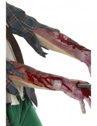 Uægte sår underarm
