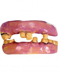 Falske tænder gule