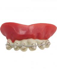 Kunstige tænder med bøjle